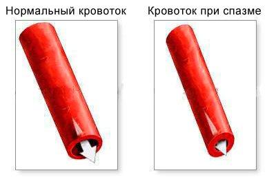 Ангиодистония: по гипертоническому типу, сосудов головного ...