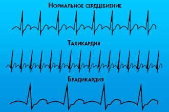 Артериальная гипертензия - Кардиология - 24.06.2011 ...
